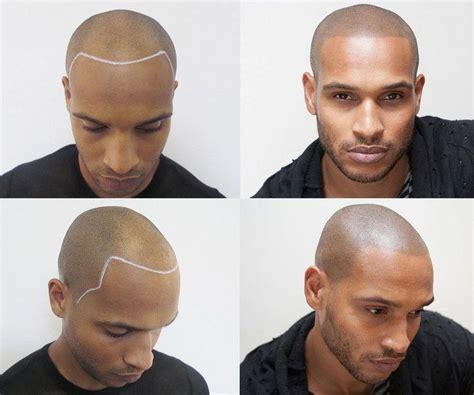 tattoos for bald men simulated hair tattoos micro pigmentation