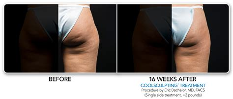 coolsculpting seattle executive spa seattle
