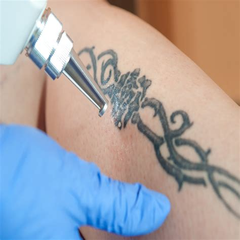 tattoo removal course presentation association of