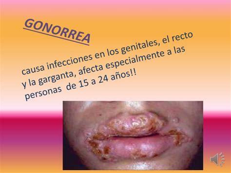 imagenes fuertes de enfermedades venereas ets gonorrea