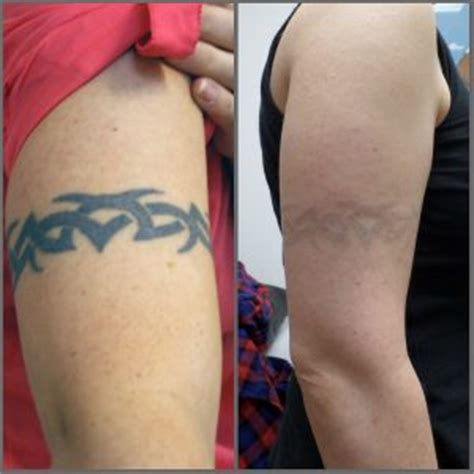 how does skin look after tattoo removal laser removal modern birmingham