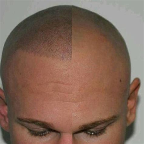 hair pigment loss 17 best images about spa business on pinterest feng shui