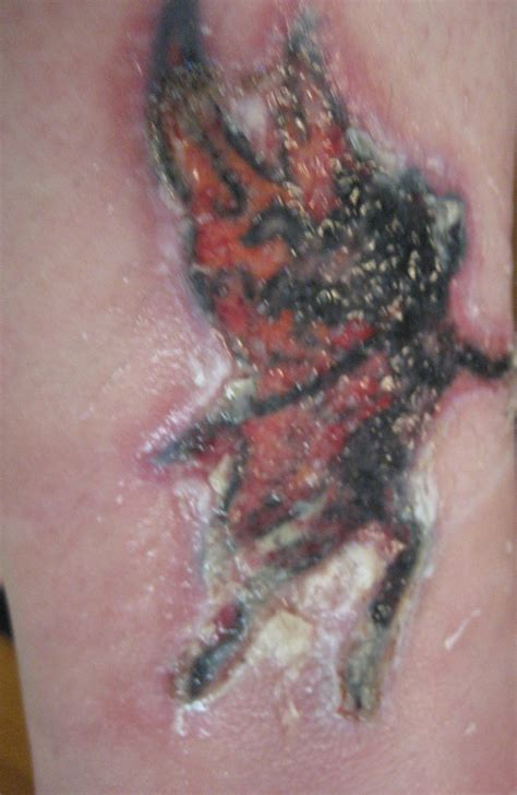 tattoo removal healing process healing process photos