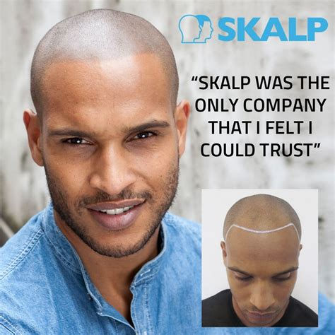 hair tattoo bald quot skalp was the only company that i felt i could trust quot