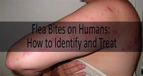 do dogs get mosquito bites flea bite on human flea bites vs mosquito bites vs bed bug bites
