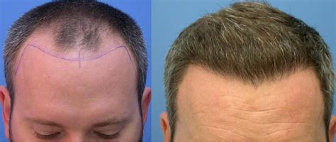 hair transplant stories and patient testimonials image