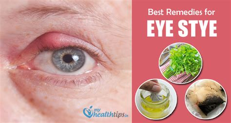 compressing simple remedies to get rid of eye stye