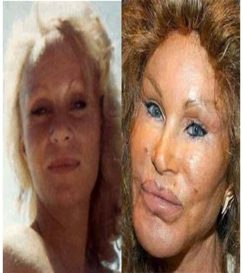 worst celeb plastic surgery 20 of the worst celebrity plastic surgery disasters