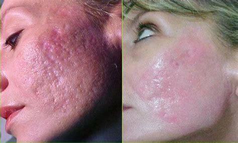 acne scars on face treatment best acne scar treatment for face best acne scar