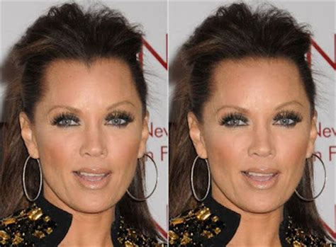 before and after widows peak cosmetic surgery connoisseur are high hairlines really a