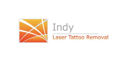 download tattoo removal tips