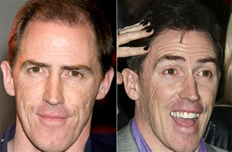 rob brydon hair rob brydon hair transplant get the story here his hair