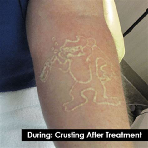 indy laser tattoo removal before and after laser removal photos