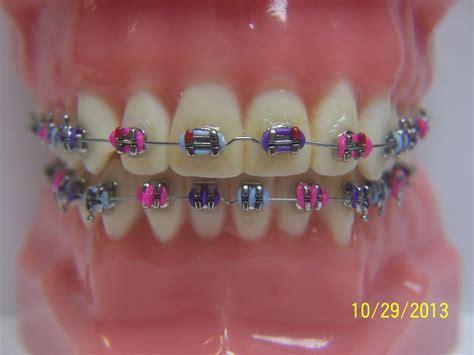 braces color combinations fashionable braces general dentist orthodontics braces