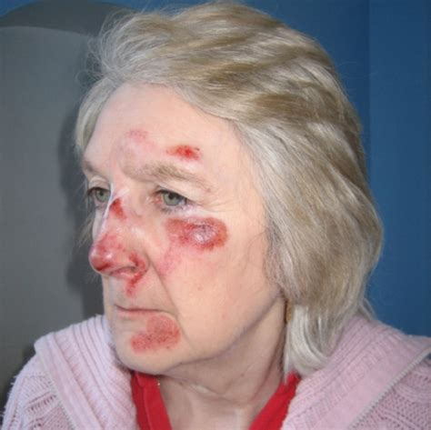 60 year old compensation call after 60 year old woman left bloodied in