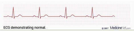 heart ecg pattern atrial flutter vs atrial fibrillation afib 11 common