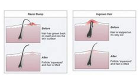 straignt or electric razor better at preventing ingrown hairs 1000 images about men s shaving skincare on pinterest