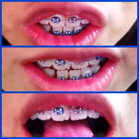 imagenes de negras sin dientes 16 best images about brackests divinos on pinterest