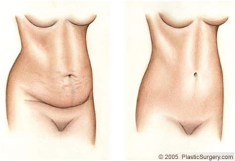 tummy tuck with c section delivery tummy tuck and c section