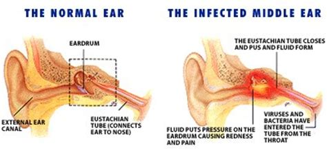 how to tell if has ear infection middle ear infections an overview of otitis media dr paul