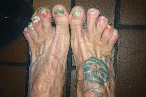 Ugly Feet Meme - the ugliest runners feet you ve ever seen part 2
