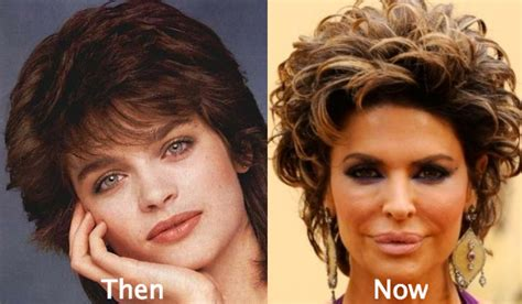 Lisa Rinna Looks Terrible | 53 celebrity plastic surgery gone wrong with photos