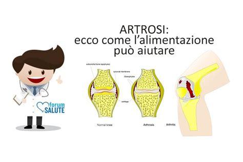 artrosi e alimentazione l importanza dell alimentazione nella gestione dell