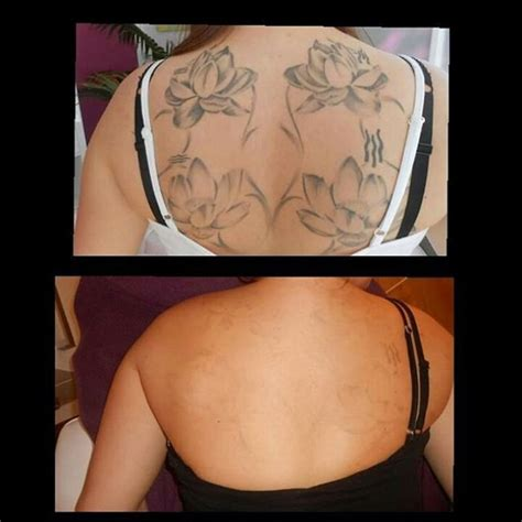 how to get rid of a tattoo removal before and after how to get rid of