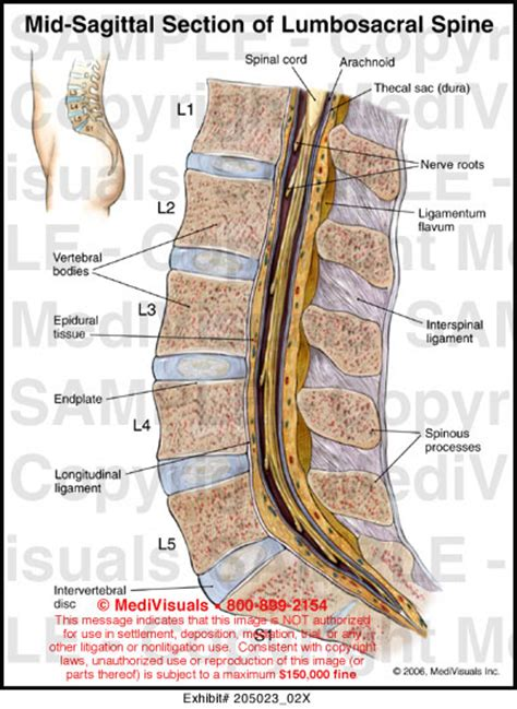 section of the spine mid sagittal section of lumbosacral spine medical illustration