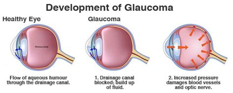 best glaucoma treatment advanced and best glaucoma treatment now available in delhi