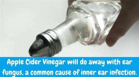 ear infection vinegar try these holistic inner ear infection remedies for your child