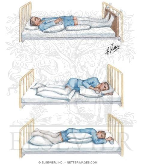 bed positioning positioning in bed after stroke