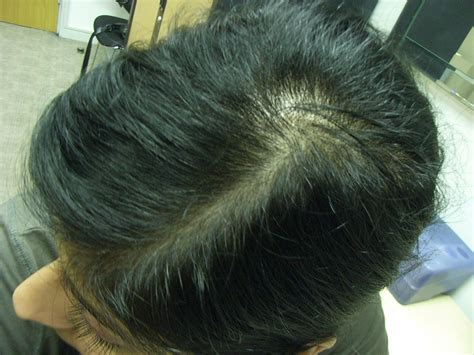 20 month old hair thinning on top the hair centre female hair loss treated before and