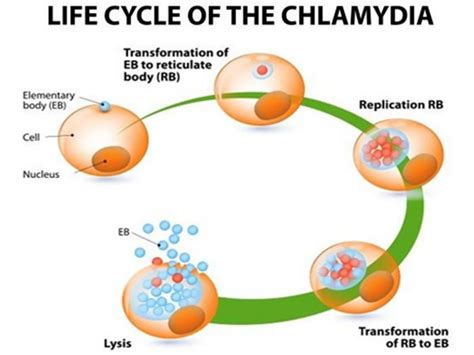 chlamydia infection symptoms causes treatments home
