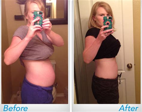 weight loss after c section delivery c section postpartum weight loss detroittoday