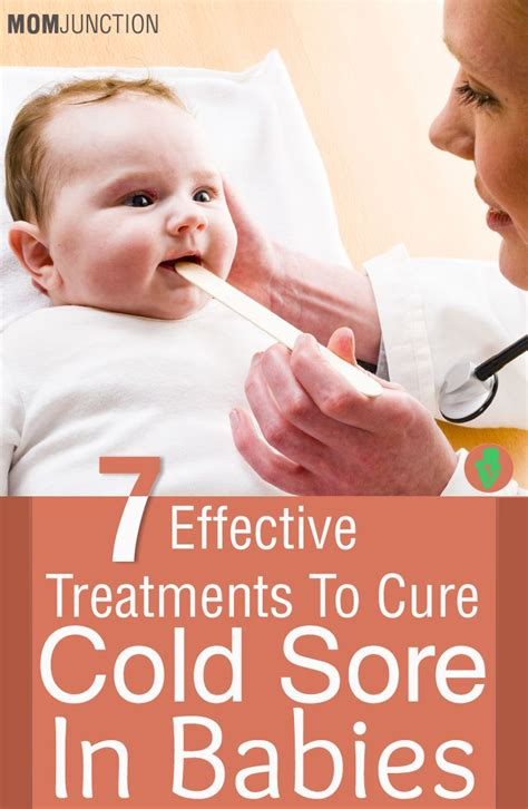 7 Remedies To Treat A Cold by 7 Effective Treatments To Cure Cold Sores In Babies Cold