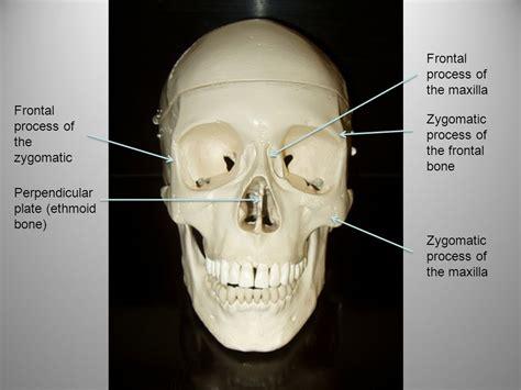Zygomatic Bone Maxillary Process / recipesvideo.info