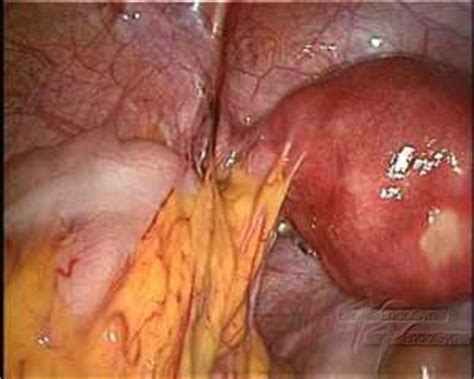 uterine infection after c section symptoms what are the different types of adhesions 187 endogyn