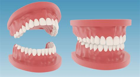 Denture 3d Model free c4d teeth 3d model dentures the pixel lab