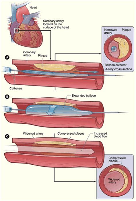 d馭inition si鑒e social angioplastica coronarica procedura e rischi farmaco e cura