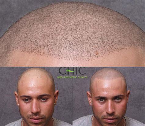 chic scalp micropigmentation