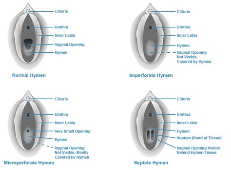 types of vaginas hymens types of hymens center for young women s health