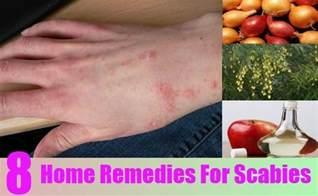 how to treat scabies at home 8 home remedies for scabies treatments cure