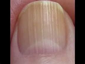 line on fingernail lines on nails youtube