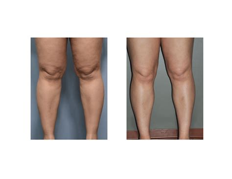 187 archivecase study knee and calf liposuction
