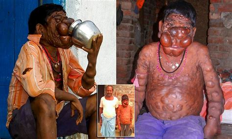indian boy  body  covered  tumours believes