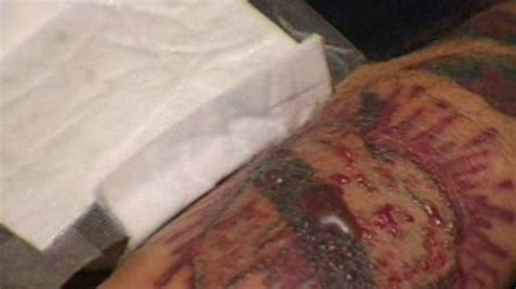 tattoo removal franchise think before you ink the painful process of tattoo removal