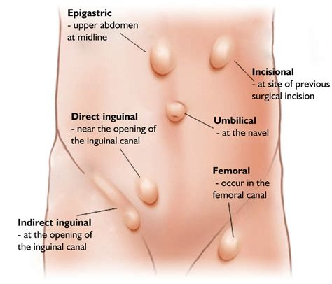 hernia symptoms treatment and prevention