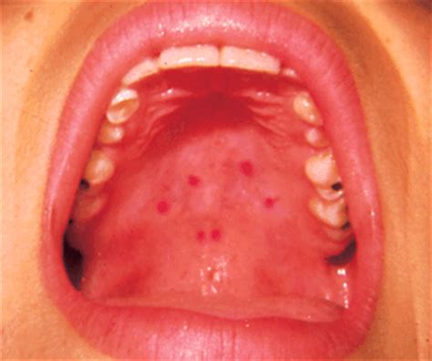 red bumps on throat red spots on roof of mouth tubezzz porn photos