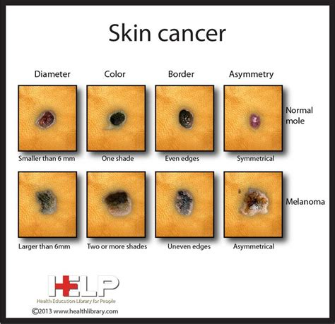 differences between malignant melanoma and a normal mole skin cancer caught my eye pinterest